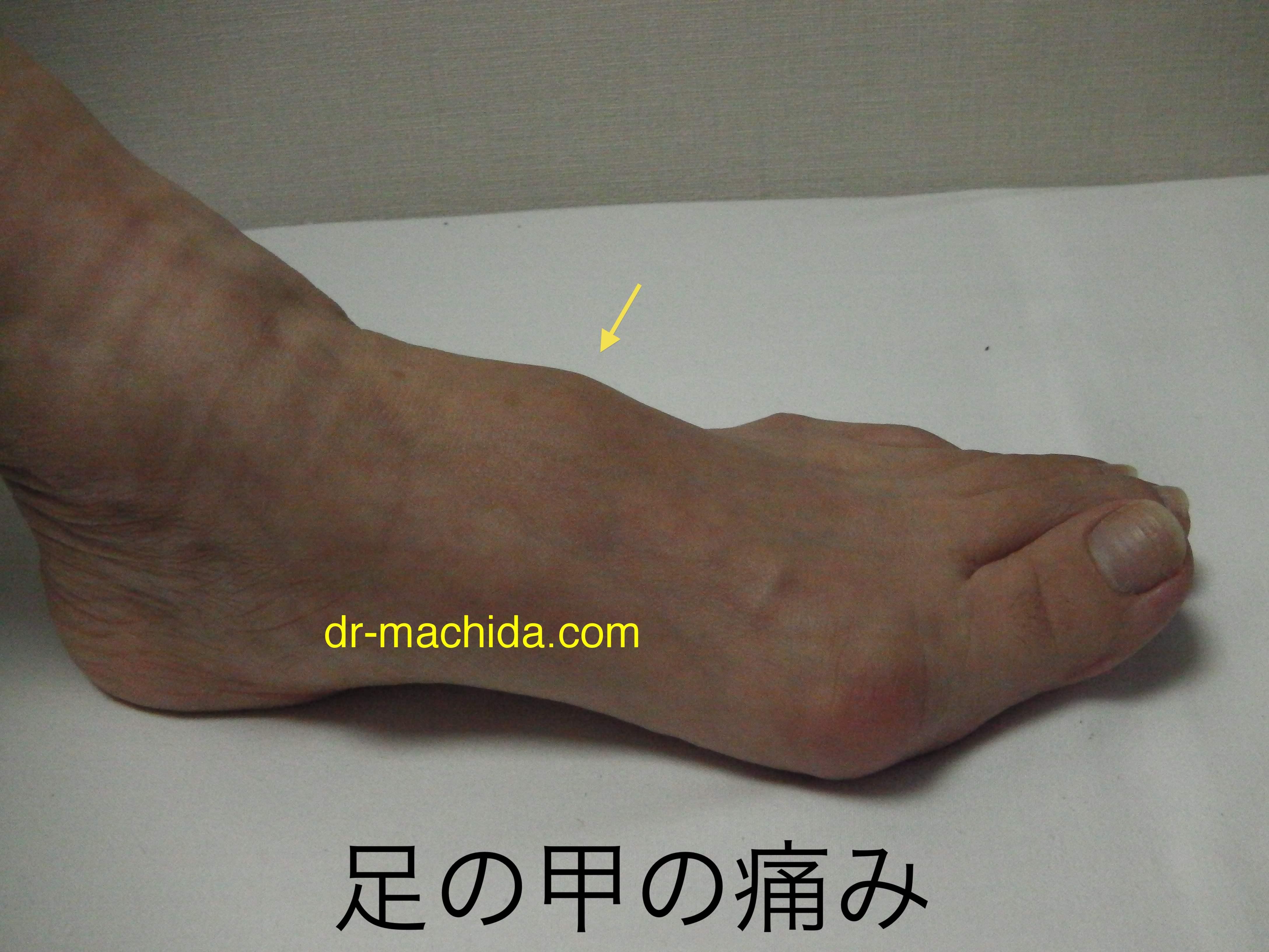 者 甲 むくみ 足 の 高齢 高齢者の足の甲 むくみが「パンパンで痛い!」